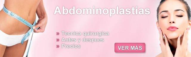 abdominoplastias, abnoplastia, abdominoplastía precio, dermolipectomia precios, abdoniplastia,  abdominosplastia, abdominoplastia antes y despues, abnominoplastia,