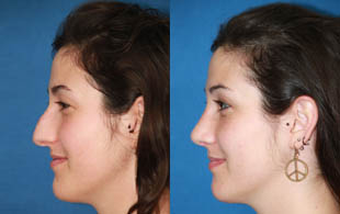 arreglar la nariz sin cirugía, arreglar nariz sin cirugia